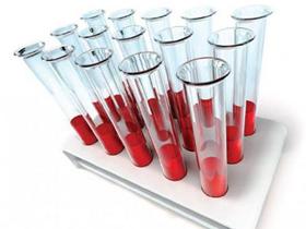 Причины-низкого-гемоглобина