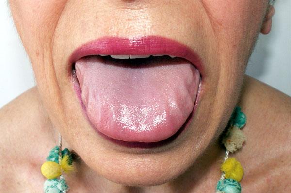 Симптомы амилоидоза