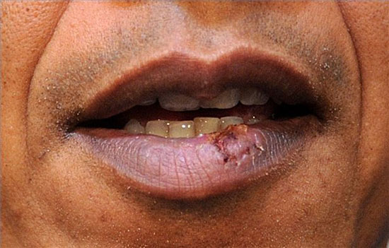 Фото простуды на губах