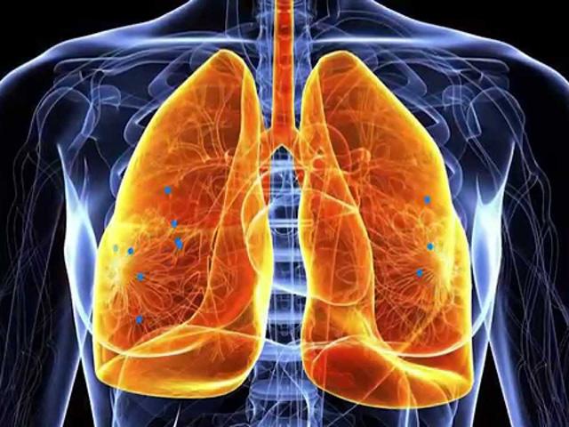 hronicheskiy-bronhit-simptomyi-i-lechenie1