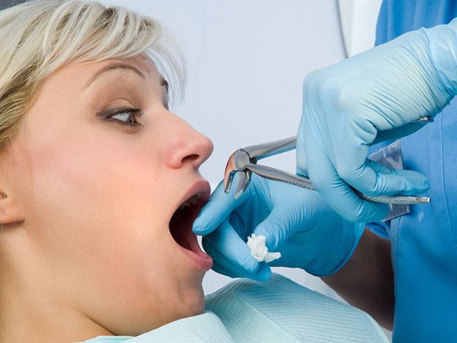 Больно ли удалять проблемный зуб мудрости