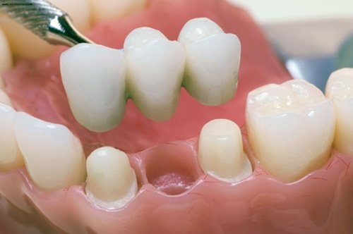 Зубы мудрости могут быть полезны для установки мостов