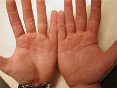 Мозоли на руках - причины и лечение