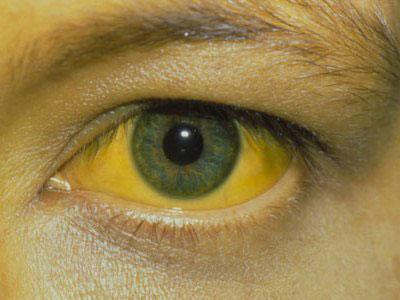 Желтый цвет кожи - характерный симптом повышенного билирубина