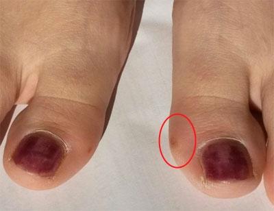 Фото сухой мозоли на большом пальце ноги
