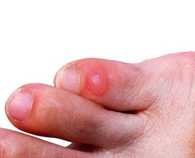 Фото мокрой мозоли на пальце ноги