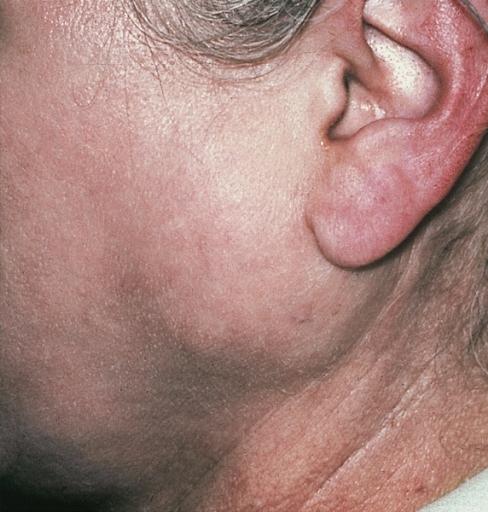 Фото воспаления околоушной слюнной железы