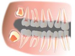 Зубы мудрости фото сколько и где они расположены