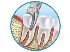 Операция по удалению зуба